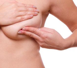 Lifting mamario o mastopexia