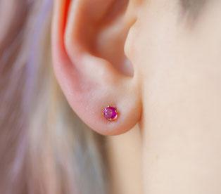 Cierre de lóbulos de la oreja dilatados
