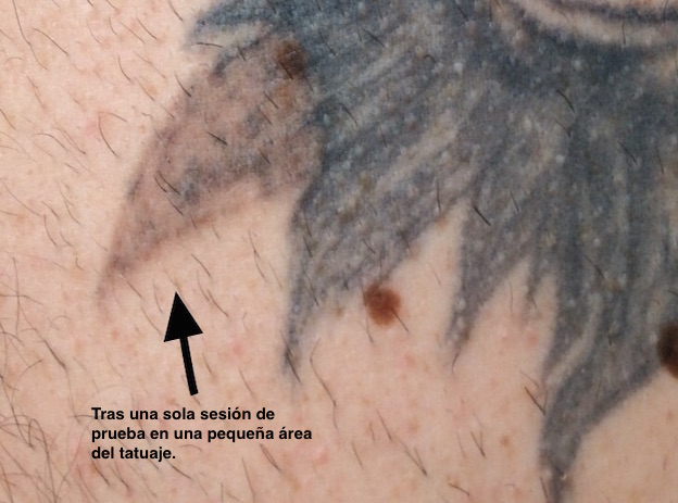 Remove tattoos with laser