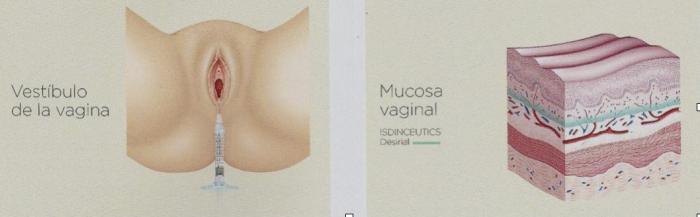rejuvenece-la-zona-genital-femenina-con-desirial