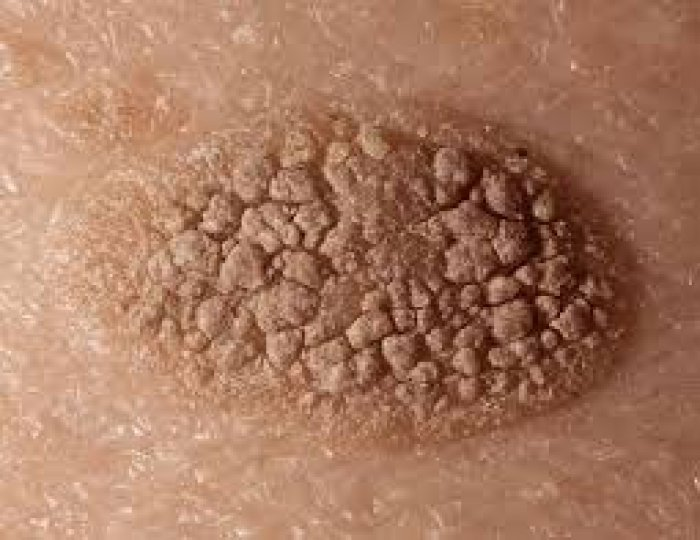 Melasma Picture Image on MedicineNet.com