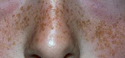 Badyaga la instrucción de la aplicación de las manchas de pigmento en