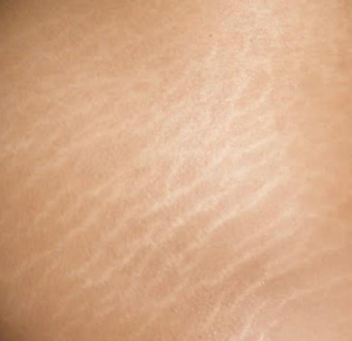 laser-fraccionado-no-ablativo-el-mejor-tratamiento-para-las-estrias-de-la-piel