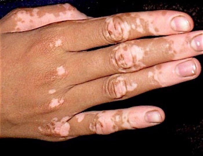 tratamiento-del-vitiligo-con-fototerapia-uvb-nb-banda-estrecha
