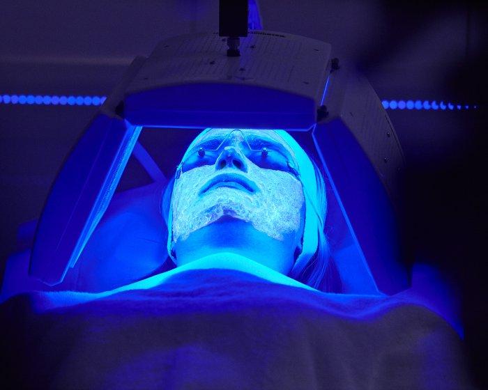 la-revolucion-en-el-tratamiento-del-acne-kleresca-terapia-biofotonica