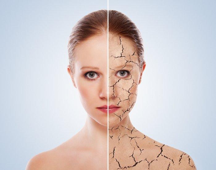 el-peeling-quimico-medico-sigue-siendo-un-tratamiento-de-moda