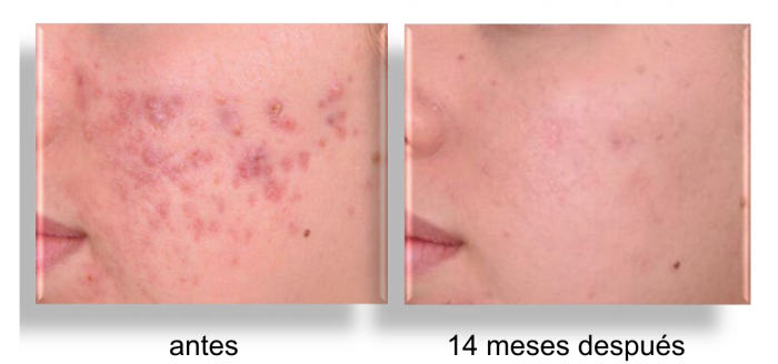 terapia-biofotonica-la-solucion-al-acne-moderado-y-severo-sin-pastillas