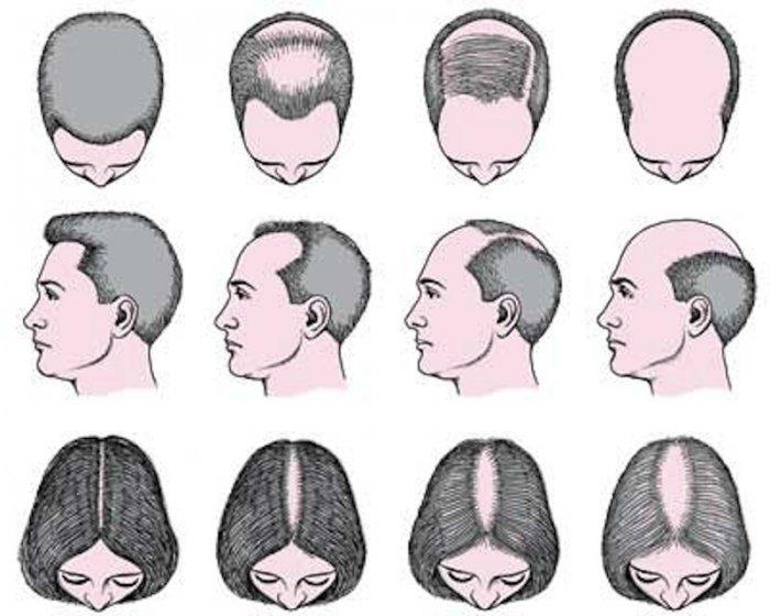 mesoterapia-con-dutasteride-para-el-tratamiento-de-la-alopecia-comun-en-hombres-y-mujeres