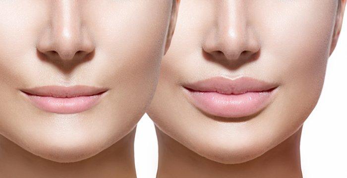 como-conseguir-unos-labios-naturales-con-acido-hialuronico