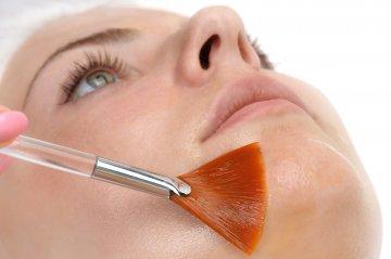Qué beneficios aportan los peelings a nuestra piel?
