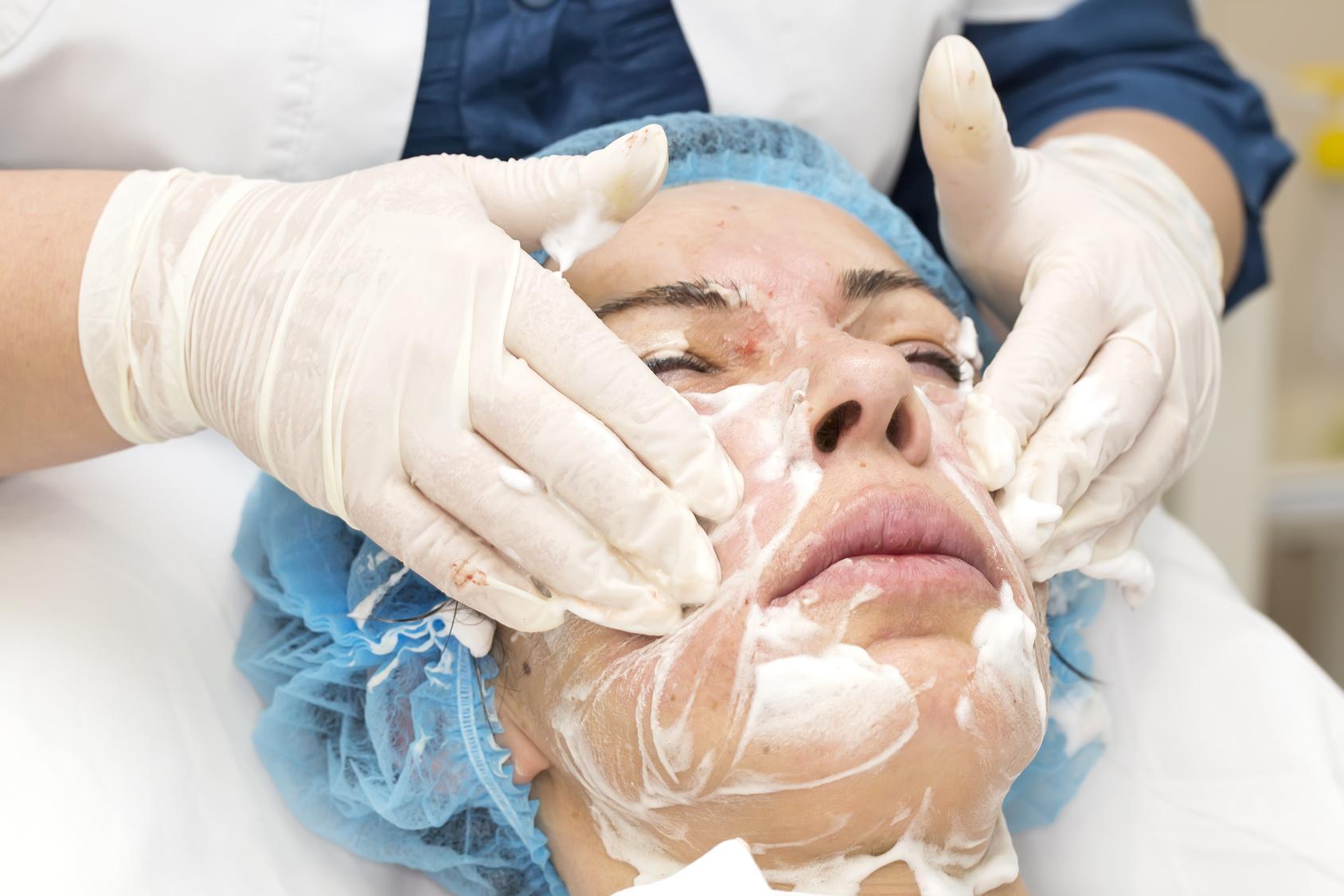 peeling_medico_cicatrices_acne.jpg