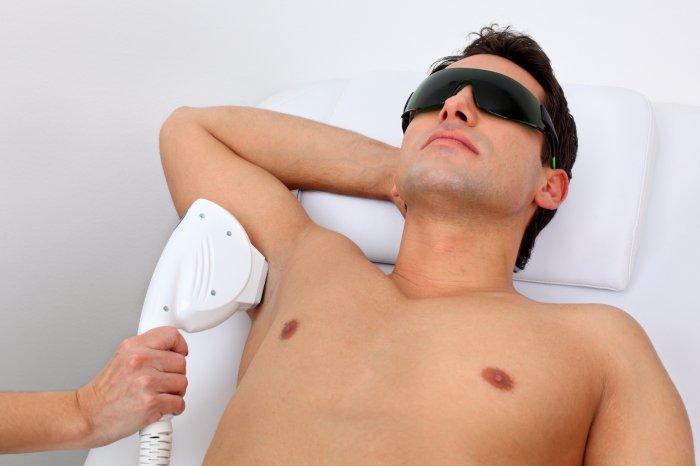 la-depilacion-con-laser-del-pelo-facial-corporal-respuesta-a-las-preguntas-mas-frecuentes