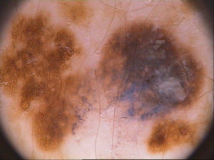 novedades-en-el-tratamiento-del-melanoma-avanzado-con-bortezomib-y-alisertib