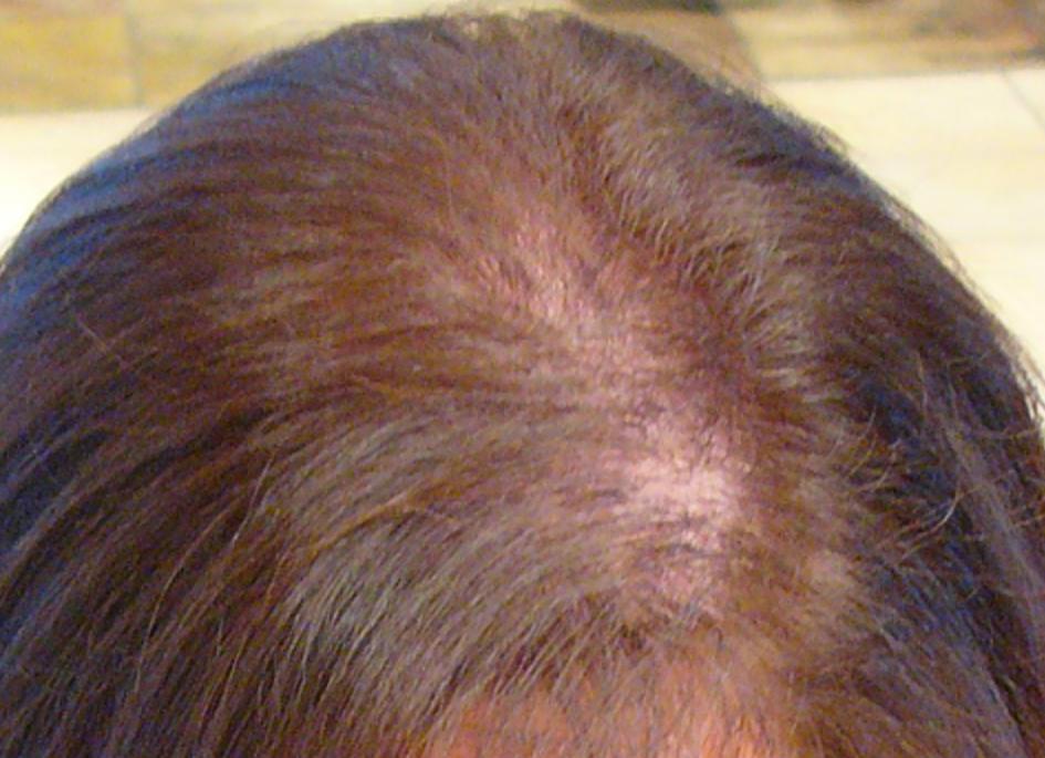 Mesoterapia con Dutasteride y Lámparas LED domiciliarias. Novedades en alopecia, calvicie o caída del cabello común.