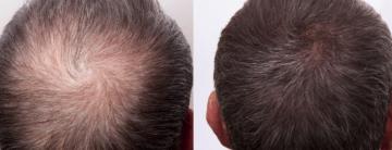 Dutasteride en Microneedling para tratar la Alopecia Común.