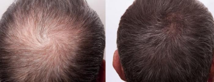 mesoterapia-con-dutasteride-para-la-alopecia-comun