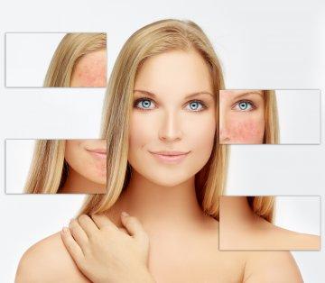 El ácido Azelaico contra el acné, la rosácea y las hiperpigmentaciones de la piel.