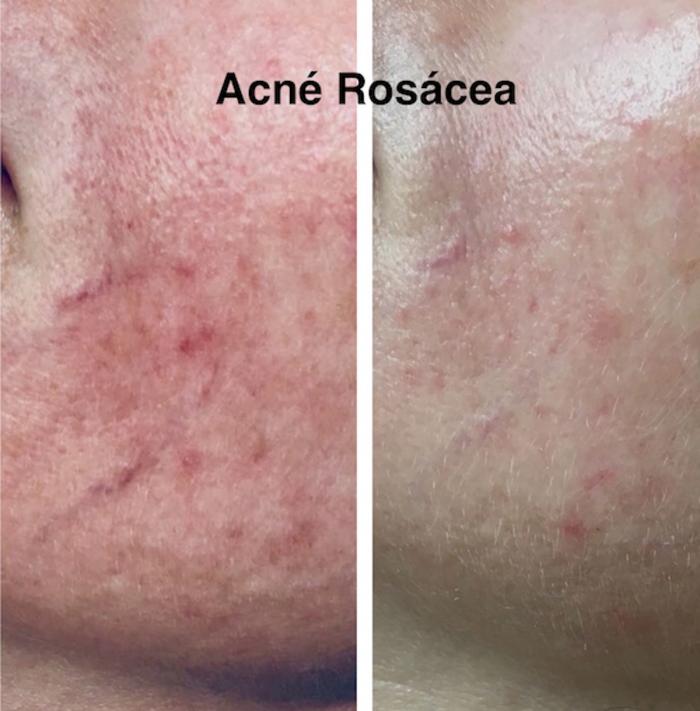 nueva-indicacion-de-la-terapia-biofotonica-acne-rosacea