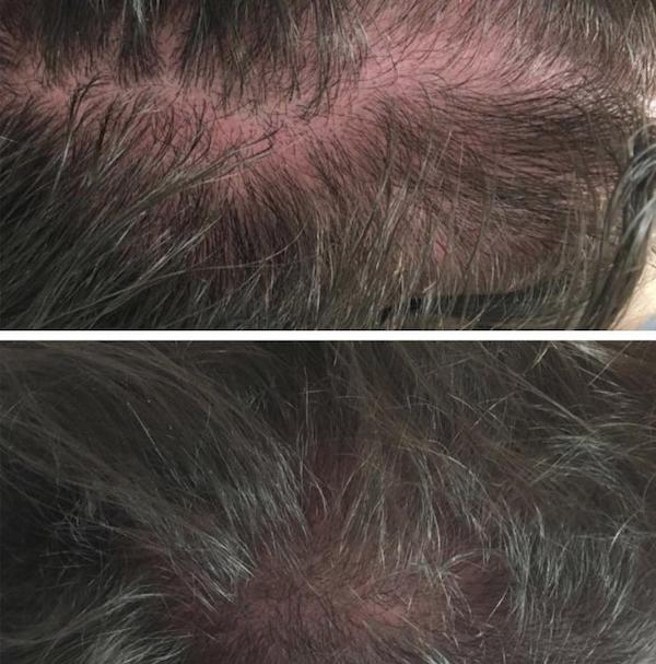 mesoterapia_con_dutasteride_para_alopecia_androgene_tica.png