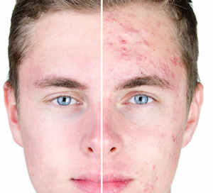 Resultado de imagen para acne vulgar