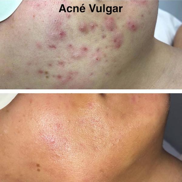 acne_vulgar.png