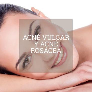 tratamiento-acne