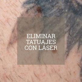 eliminar_tatuajes_con_laser