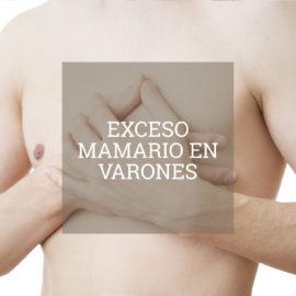 exceso-mamario-varones