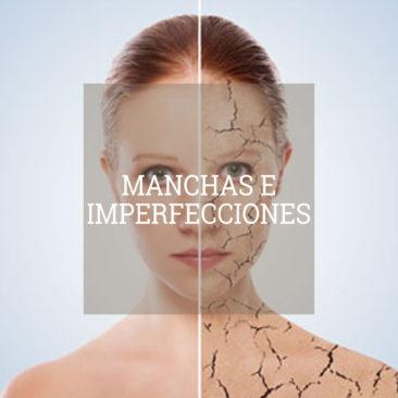 manchas-imperfecciones