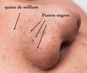 Como quitar los puntos de grasa en la cara