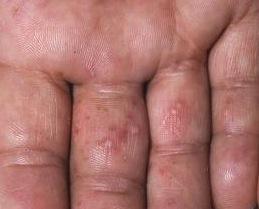 granitos en las manos y pies