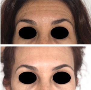 tratamiento de arrugas de expresión y elevación de cejas con botox