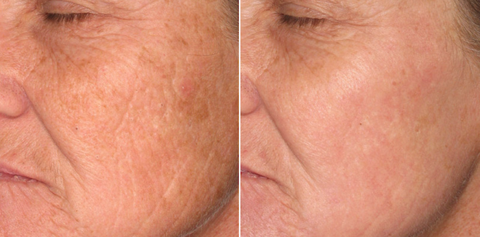 láser para arrugas y rejuvenecimiento facial.